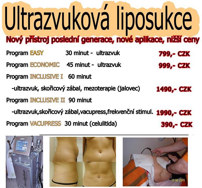 Odstranění tuku pomocí liposukce ve ViaVestra Roztoky u Prahy